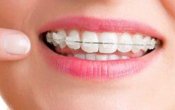 Giá niềng răng mắc cài sứ