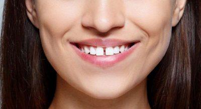 Răng cửa hô là hiện tượng răng cửa bị vượt ra bên ngoài răng cửa phía dưới