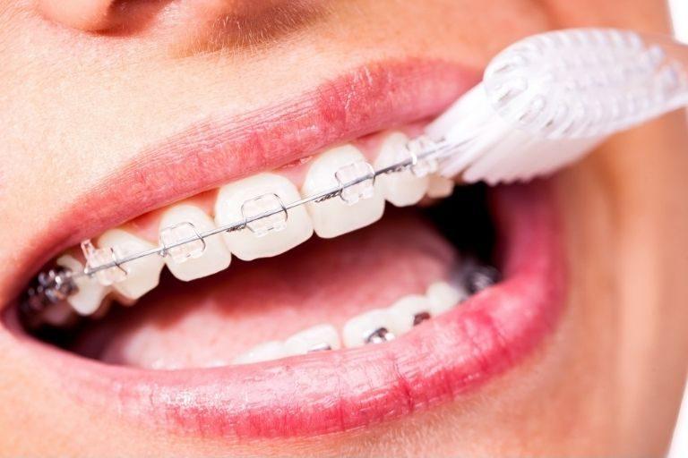 Đánh răng mỗi ngày để giữ hàm răng luôn sạch sẽ