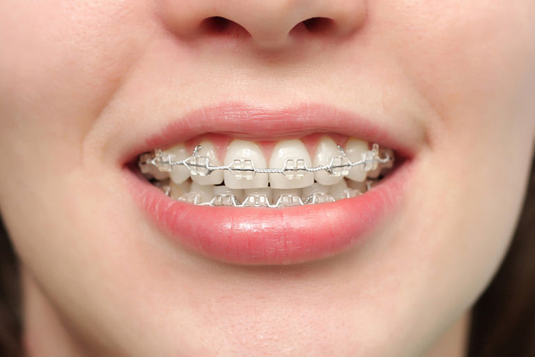 Niềng răng pha lê có kết quả phục hồi răng tốt, tính thẩm mỹ cao