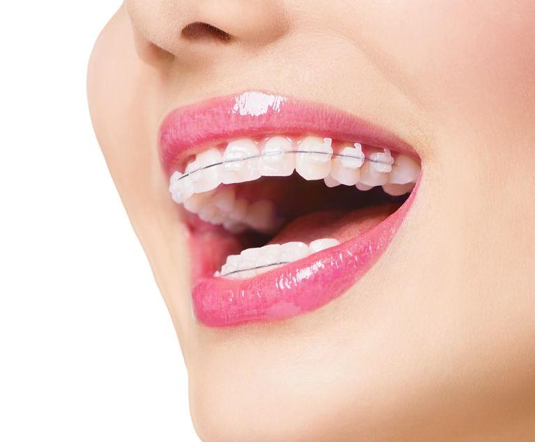 Niềng pha lê và niềng răng sứ có nhiều điểm khác nhau