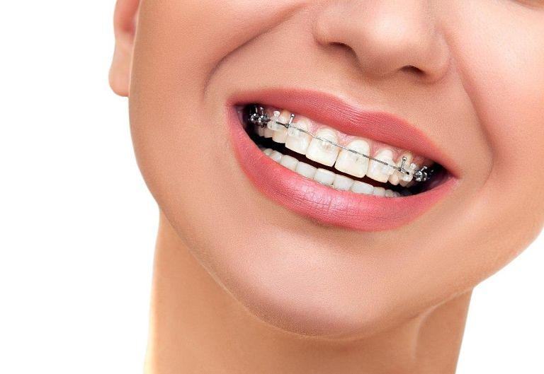 Chi phí niềng răng pha lê phụ thuộc vào nhiều yếu tố