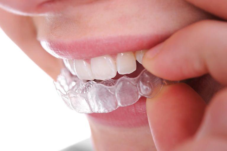 Niềng răng Ecligner là công nghệ niềng răng trong suốt hiện đại