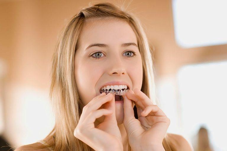 Khay niềng răng dễ dàng tháo lắp và vệ sinh