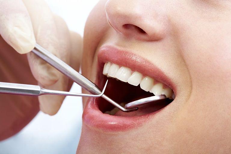 Khách hàng sẽ được kiểm tra răng miệng và lấy dấu răng trước khi niềng răng
