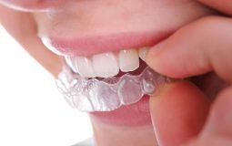 Niềng răng Ecligner có tốt không? Một số thông tin cần biết