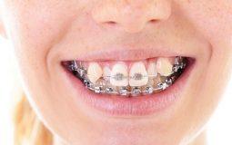 Chuyên gia giải đáp niềng răng có thể giữ lại răng khểnh