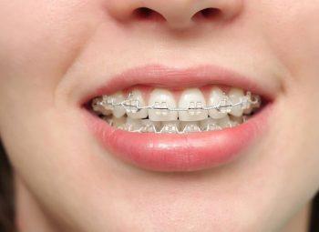 Niềng răng hô hàm: Quy trình, chi phí và địa chỉ thực hiện uy tín
