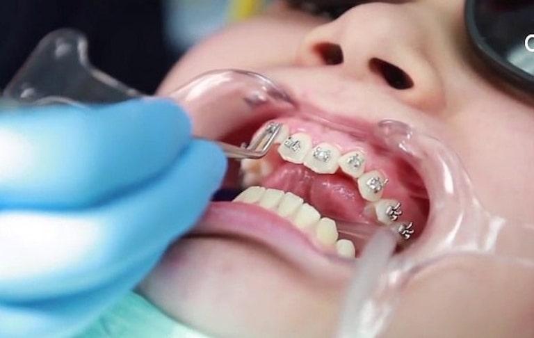 Niềng răng khểnh bao nhiêu tiền phụ thuộc vào phương pháp niềng răng loại nào