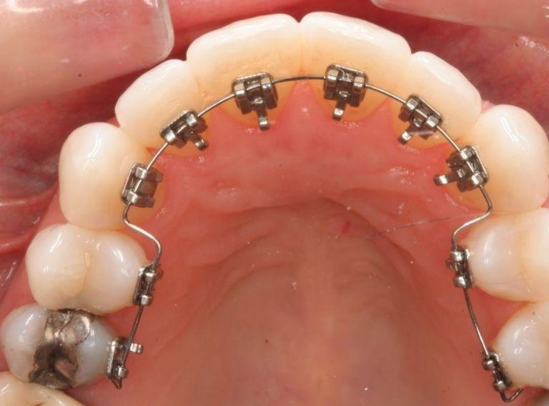 Mắc cài mặt trong là phương pháp niềng răng khểnh đảm bảo tính thẩm mỹ cao