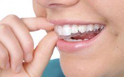 Niềng răng Leetray là gì? Có tốt không và khi nào nên thực hiện?