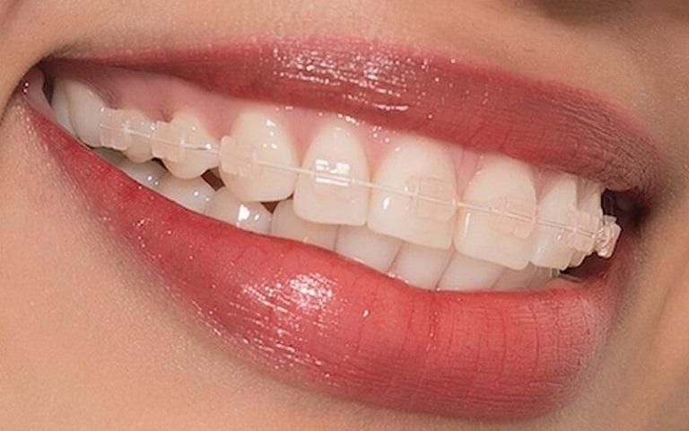 Niềng răng mắc cài sứ được nhiều người áp dụng hiện nay