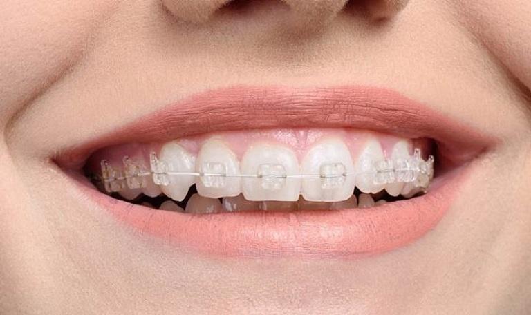Phương pháp niềng răng sứ có nhiều ưu điểm