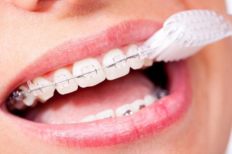 Vệ sinh răng miệng sạch sẽ trong quá trình niềng răng
