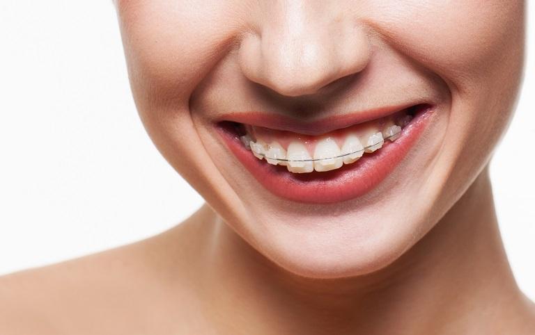 Niềng răng mắc cài sứ có tính thẩm mỹ cao