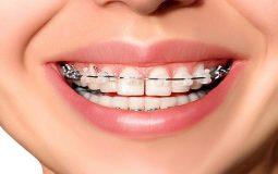 Niềng răng mắc cài sứ là gì? Có tốt không? Quy trình thực hiện