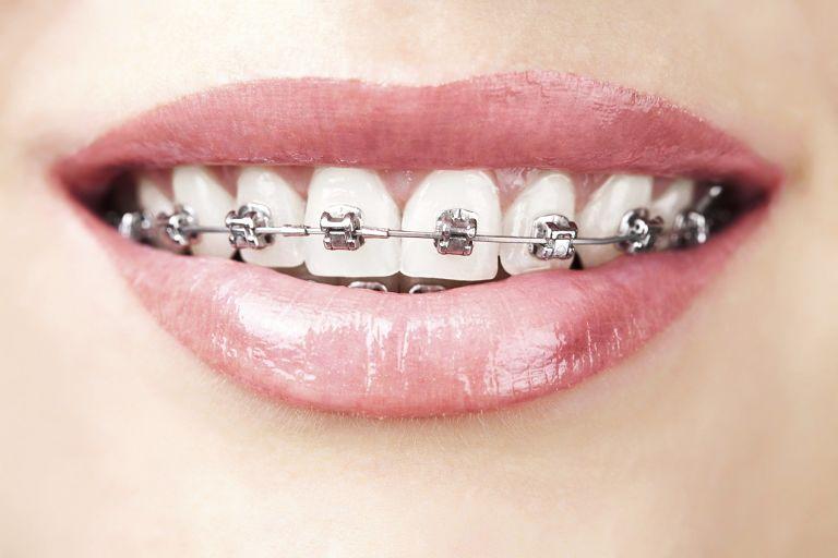 Niềng răng sắt là phương pháp chỉnh nha đã có từ lâu đời