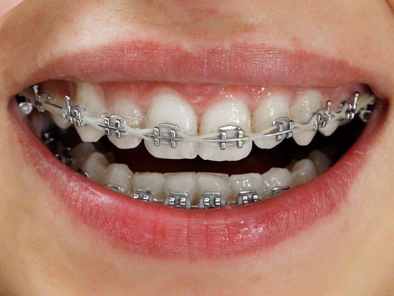 Niềng răng sắt có các ưu và nhược điểm