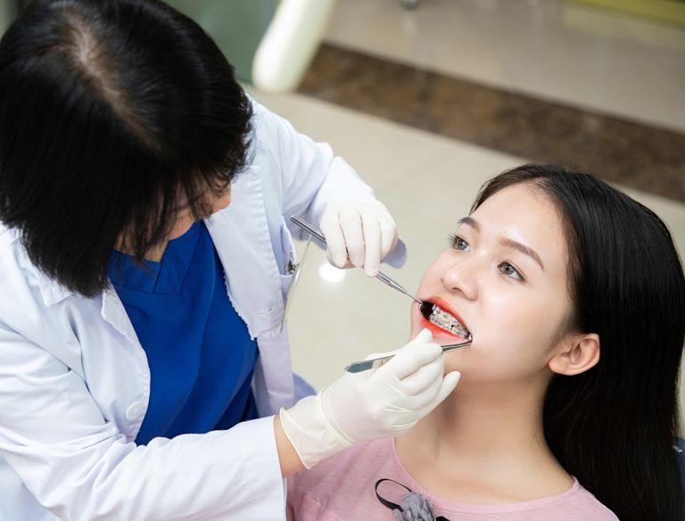 Quy trình niềng răng sắt tương đối đơn giản, thời gian thực hiện nhanh