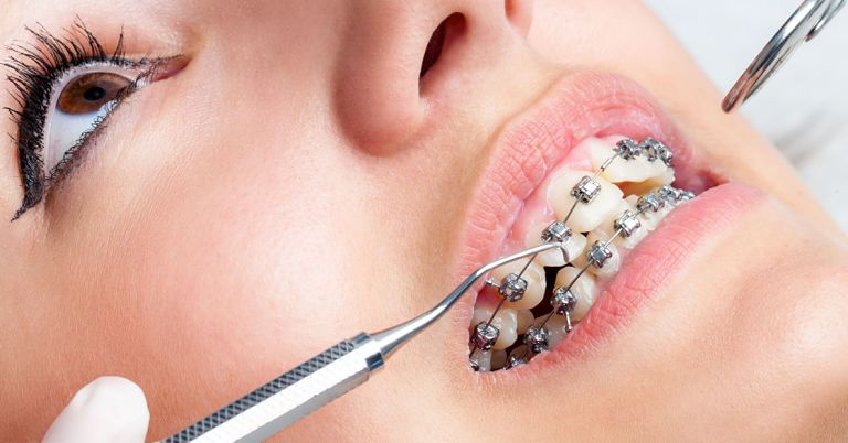 Hiện nay có nhiều kỹ thuật niềng răng sắt bạn có thể lựa chọn