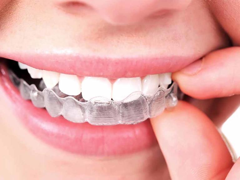 Niềng răng vô hình Clear Aligner sử dụng các khay niềng trong suốt để nắn chỉnh răng
