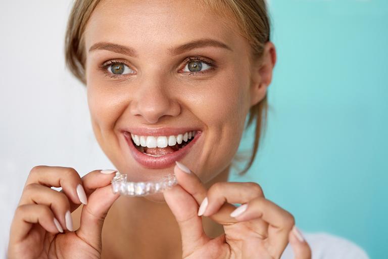 Niềng răng Clear Aligner cũng có một số nhược điểm như thời gian niềng lâu, chi phí cao