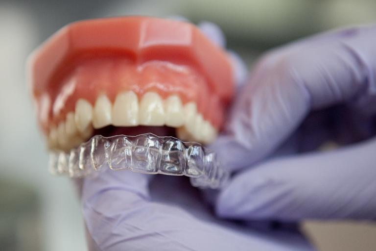 Khay niềng được chế tác tỉ mỉ sao cho phù hợp với răng miệng của từng khách hàng