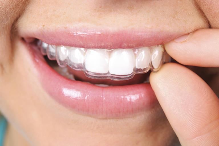 Niềng răng Clear Aligner không thật sự hiệu quả khi mắc các khiếm khuyết nặng trên răng