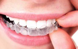 Niềng răng vô hình Clear Aligner: Đặc điểm, chi phí và địa chỉ thực hiện uy tín