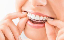 Niềng răng vô hình Zenyum là kỹ thuật gì? Phương pháp này có tốt không?