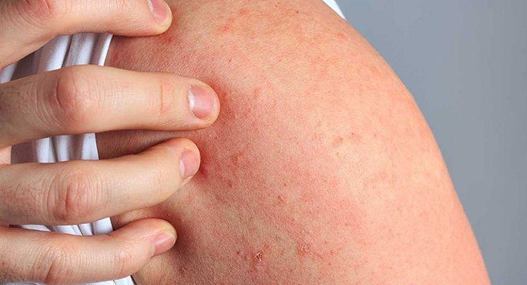 Nổi mẩn ngứa sau khi tắm khiến người bệnh rất khó chịu