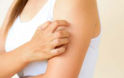 Nổi mẩn ngứa sau khi tắm: Nguyên nhân do đâu, cách điều trị hiệu quả?