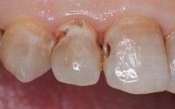 Sâu khe răng là gì? Nguyên nhân, triệu chứng, cách điều trị hiệu quả nhất