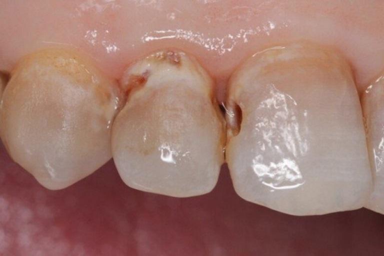 Sâu kẽ răng cần sớm được điều trị để tránh những ảnh hưởng về sau