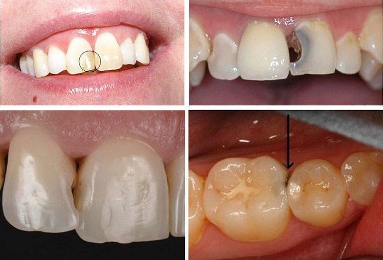 Hình ảnh bệnh nhân bị sâu khe răng thường thấy