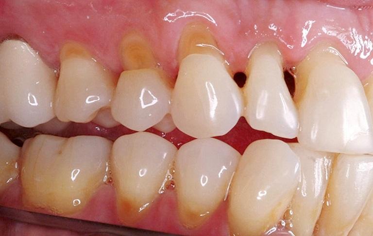 Sâu khe răng cũng phát triển theo từng giai đoạn khác nhau