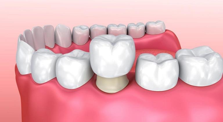 Phương pháp bọc răng sứ cho răng sâu để ngăn chặn ổ viêm nhiễm