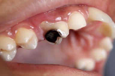 Sâu răng dẫn đến ung thư có hay không? Dấu hiệu nhận biết và cách phòng tránh