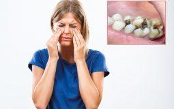 Sâu răng viêm xoang: Đối tượng, nguyên nhân, biện pháp điều trị tốt nhất