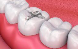 Trám răng sâu là gì? Khi nào thực hiện, các phương pháp, giá bao nhiêu