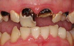 Tất tần tật cách trị sâu răng vĩnh viễn, hiệu quả nhất bạn cần biết