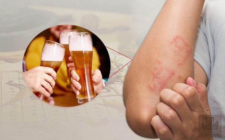 Uống rượu nổi mề đay do chức năng gan suy giảm