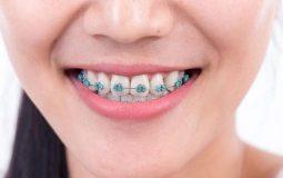 Viêm nha chu khi niềng răng