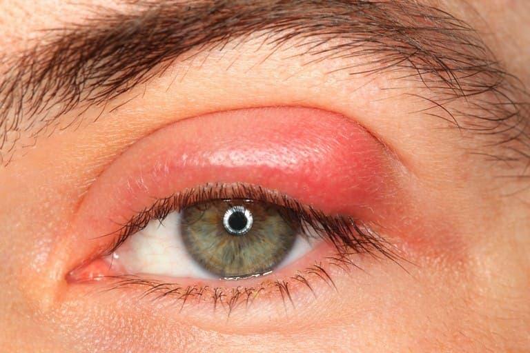 Người bệnh có thể bị sưng hoặc sụp mí mắt
