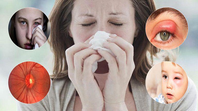 Nhiễm trùng lan rộng từ xoang sang hốc mắt có thể gây ra viêm xoang biến chứng mắt