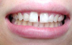 Bọc răng sứ cho răng thưa là phương pháp thẩm mỹ nha khoa quan trọng