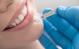 Xem xét các tiêu chí lựa chọn nên bọc răng sứ loại nào tốt