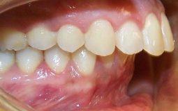 Răng hô nặng được biết tới là một dạng bệnh lý do sai lệch khớp cắn gây ra