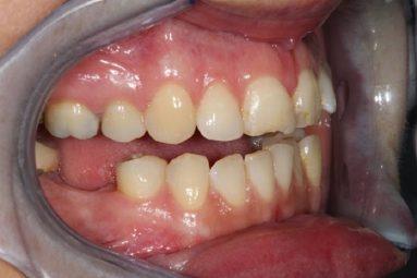Trồng răng cấm bao nhiêu tiền phụ thuộc vào nhiều yếu tố khác nhau