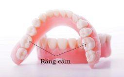 Răng cấm là răng hàm nằm tại vị trí số 6 trên cung hàm
